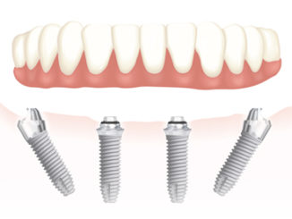 Tecnica All on Four implantologia dentale